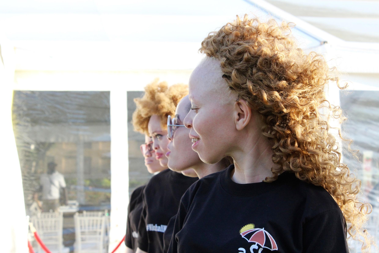 Les gagnants du concours «Mr et Miss Albinos» deviendront des «ambassadeurs» de la sensibilisation à la cause des albinos dans toute la région.
