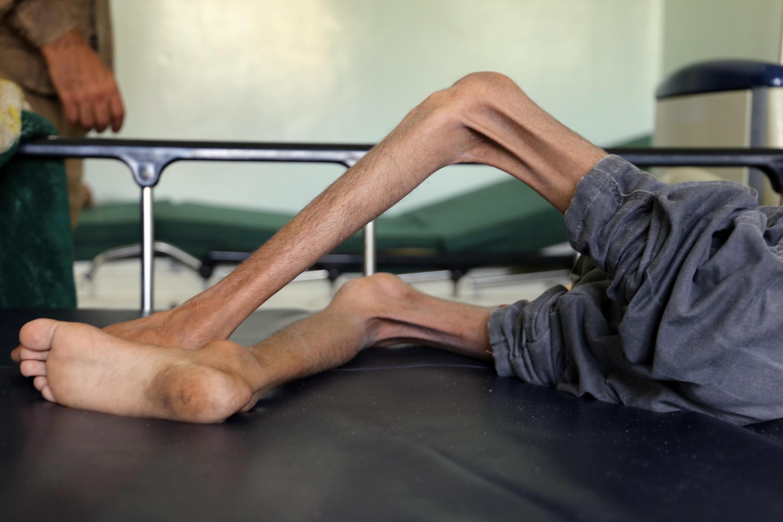 Ghazi Ali bin Ali, a yemenite boy suffering from severe malnutrition in the city of Taiz, Yemen.