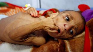 也门嫉妒营养不良儿童特写照