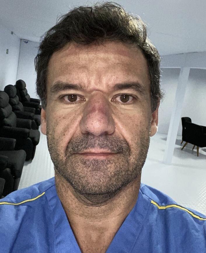 O médico Daniel Carreiro mostra as marcas no rosto provocadas pelos equipamentos de proteção contra a Covid-19, após mais um dia de plantão no hospital de campanha, no Rio de Janeiro.