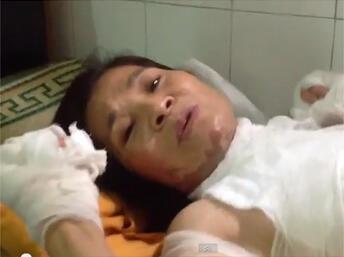 Bà Đỗ Thị Thiêm tại bệnh viện (Ảnh từ video youtube - Bùi Thị Minh Hằng - 04/07/2013)