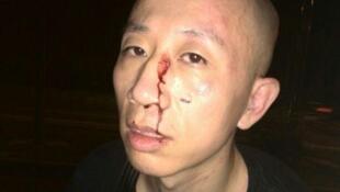 中国维权人士胡佳昨7月16晚在北京遇袭,鼻梁受伤流血,腰部被踹,连雨伞也被打弯。2014年7月16日。