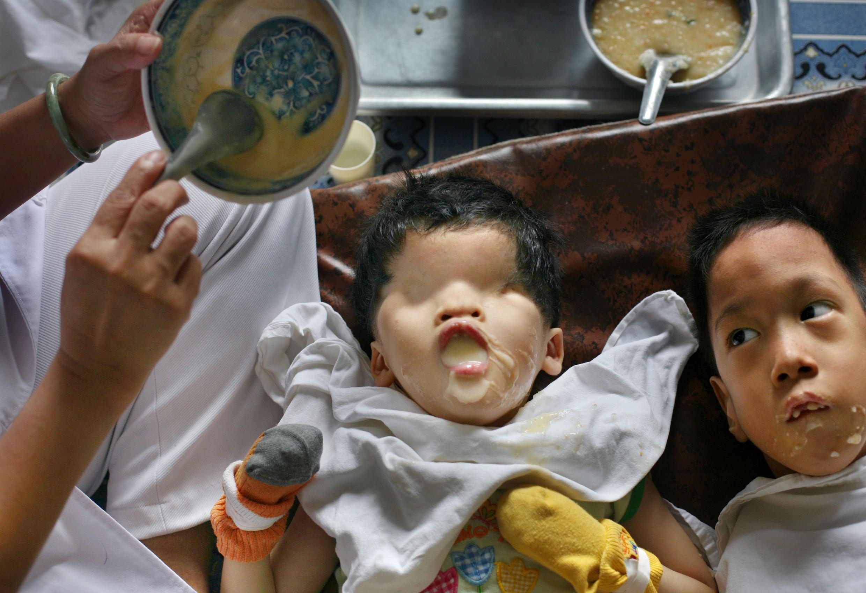 """Tran Huynh Thuong Sinh, una niña de cinco años, que nació sin ojos en la provincia vietnamita de Binh Dinh, recibe el desayuno de una enfermera en el centro """"Peace Village"""" del hospital Tu Du en Ciudad Ho Chi Minh, Vietnam, en esta foto de archivo del 25 de mayo de 2007. Los funcionarios del hospital sospechan que la dioxina del Agente Naranja bloquea los receptores del feto en desarrollo, impidiendo que las hormonas que normalmente instruirían a las células para formar los ojos lo hagan."""