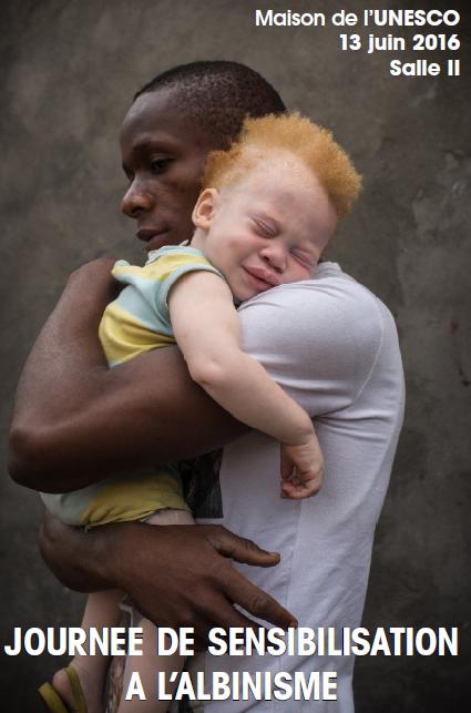 Journée de sensibilisation à l'albinisme en partenariat avec l'Unesco