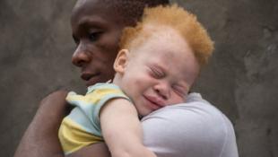 Cartaz de sensibilização sobre Albinismo