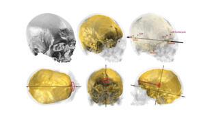 Illustration du protocole utilisé pour quantifier les «pétalias», exemple pour Cro-Magnon 1. Le crâne et l'endocrâne de chaque spécimen sont reconstruits virtuellement en 3 dimensions grâce à des données d'imagerie.