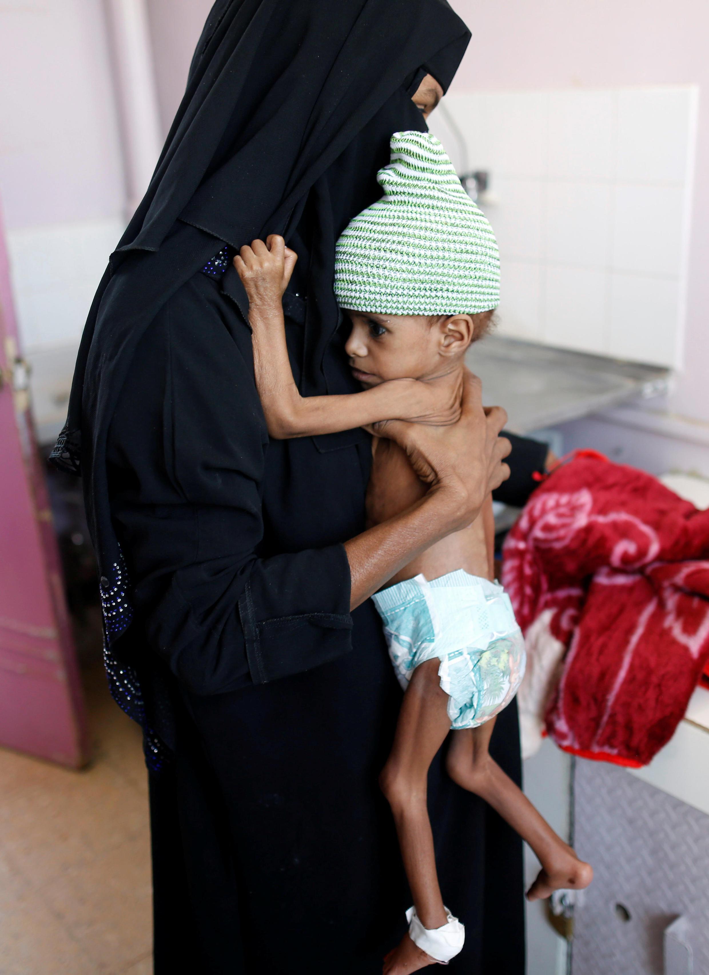 Uma mãe com sua criança desnutrida em um centro de tratamento de desnutrição em Sanaa, no Iêmen. 07/10/18.