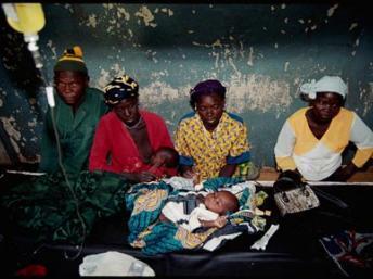Enfant souffrant du paludisme.