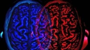 O excesso de cortisol danifica o cérebro a longo prazo