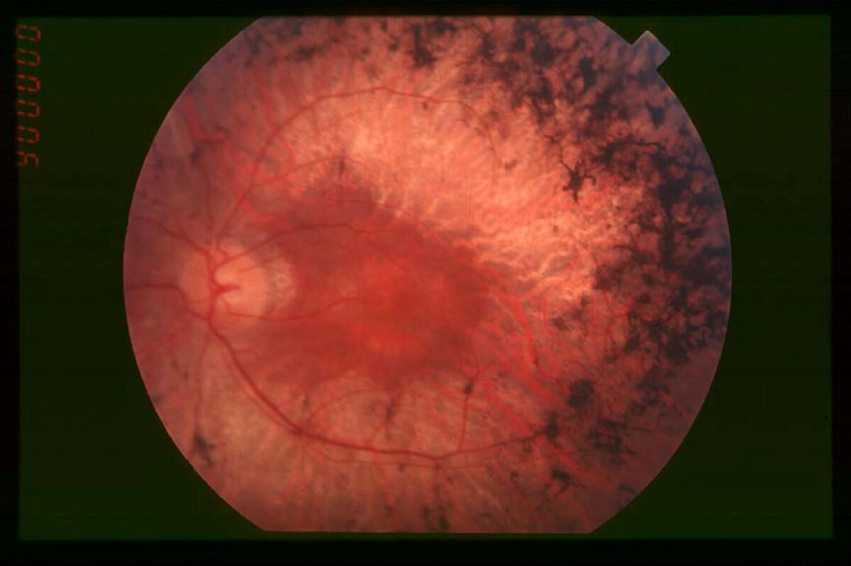 Chế tạo võng mạc nhân tạo để trị bệnh viêm võng mạc sắc tố (nguyên nhân chính gây mù) là một thành tựu y học lớn của năm 2014. Trong ảnh, võng mạc của một bệnh nhân mắc căn bệnh  này. Khoảng 2 triệu người trên thế giới là nạn nhân, chủ yếu ở độ tuổi 40.