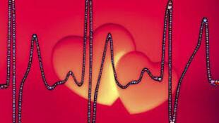 arrêt cardiaque- massage cardiaque