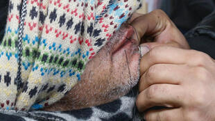 An Iranian migrants has his lips sewn shut in protest at the razing of part of the Jungle camp in Calais