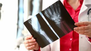 Principalement liée au vieillissement, l'ostéoporose augmente le risque de fractures.