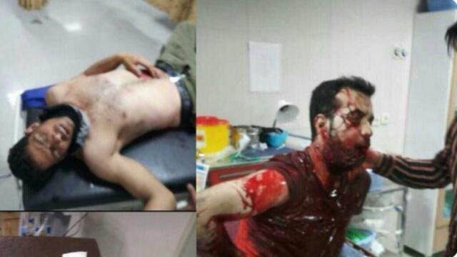 تصاویر زخمی شدگان تظاهرات کازرون
