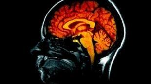 Les accidents vasculaires cérébraux (AVC) sont devenus l'une des premières causes de mortalité au Congo.