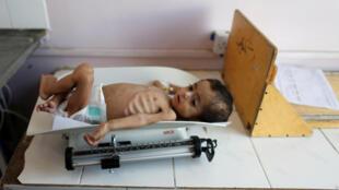 En total serán 5,2 millones los menores amenazados de hambruna en Yemen.
