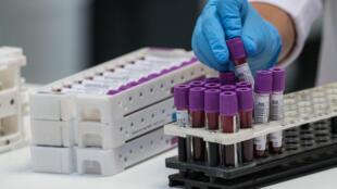 Una técnico de laboratorio organiza unas muestras de sangre antes de someterlas a pruebas de COVID-19 el 29 de mayo de 2020 en Besançon, Francia