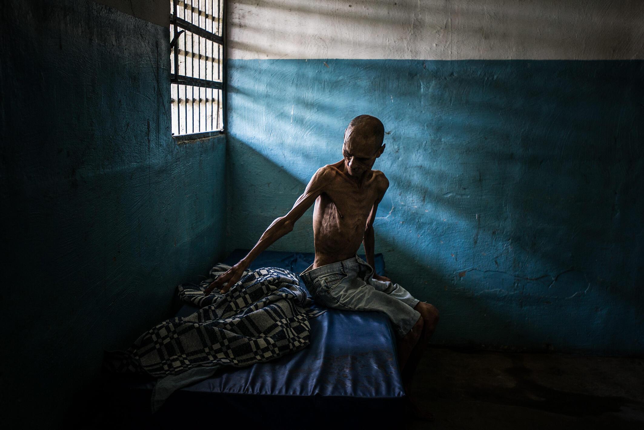 Omar Mendoza souffre de schizophrénie et de malnutrition sévère : il ne pèse que 35 kilos. L'hôpital psychiatrique où il se trouve est paralysé par une grave pénurie de nourriture et de médicaments. 25 août 2016.
