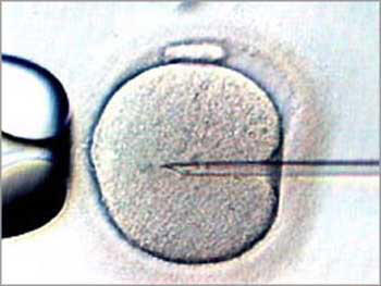 Fecundación 'in vitro'.