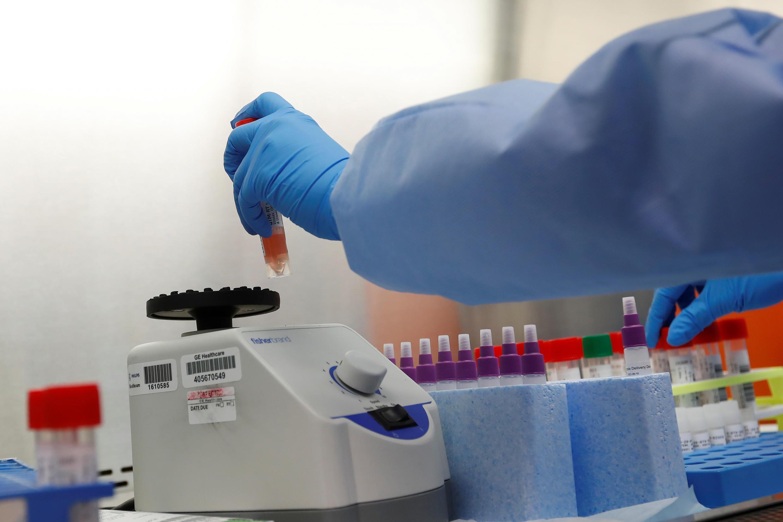 Casos de novo coronavírus ultrapassaram um milhão de pessoas infectadas.