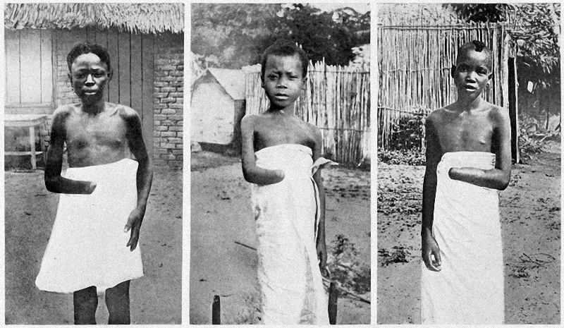 Belgian colonial officials amputated Congolese people, including children