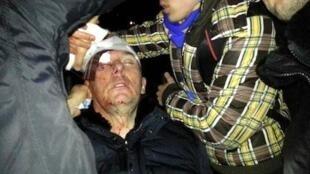 Экс-глава МВД Украины, оппозиционер Юрий Луценко оказался в реанимации после избиения бойцами «Беркута»