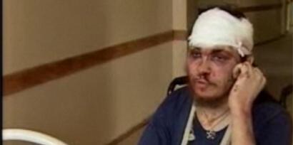 Алексей Дмитриев в больнице после нападения