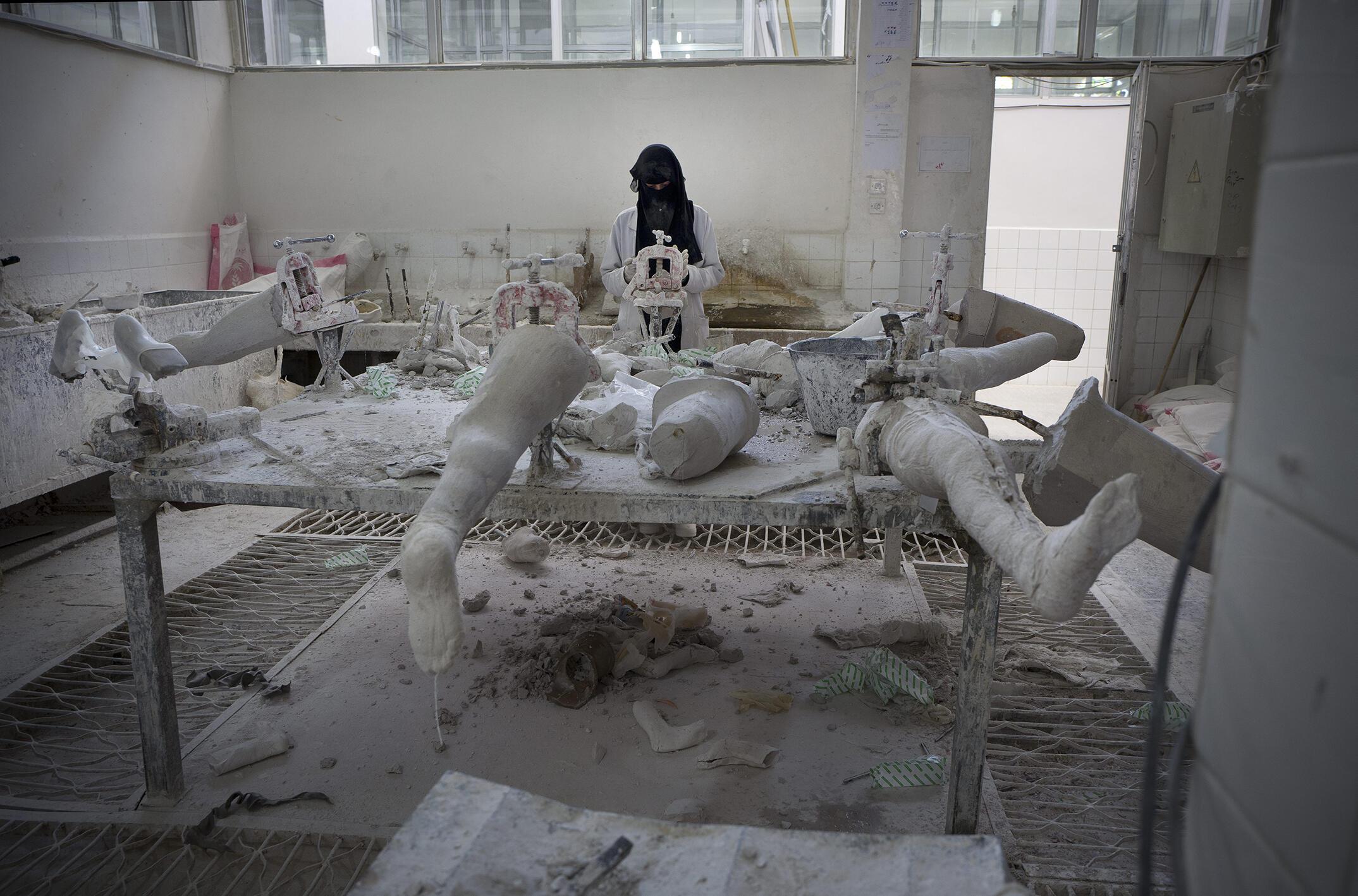 Saná (Yemen). Fabricación de prótesis. Desde el inicio del conflicto, más de 6.000 yemenitas han sido amputados.