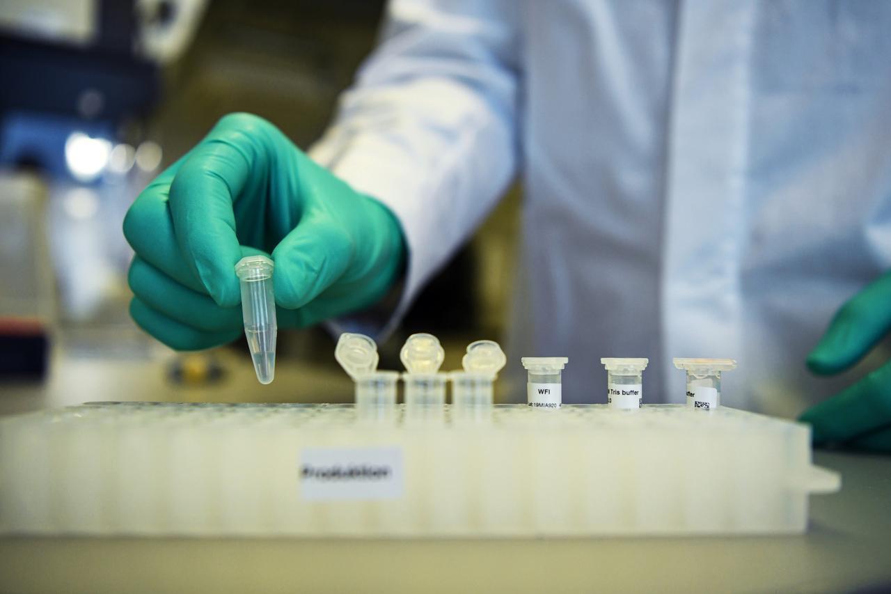 چندین کشور برای ساخت واکسن کرونا تلاش میکنند