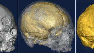 Les changements de forme du cerveau au sein de l'espèce Homo sapiens