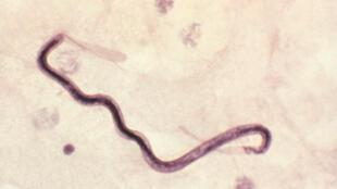 Un Loa loa observé au microscope.