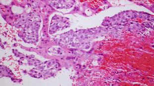 Le sujet du papier frauduleux, une étude sur une nouvelle molécule anticancéreuse extraite d'un lichen (photo: cellule cancéreuse).