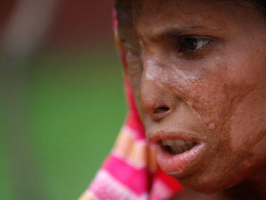 Indian woman, victim of an acid attack.