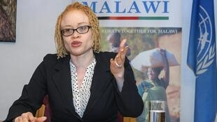La Nigériane Ikponwosa Ero, experte indépendante de l'ONU sur la question des personnes atteintes d'albinisme et albinos elle-même, a mené une mission de 12 jours au Malawi en 2016.