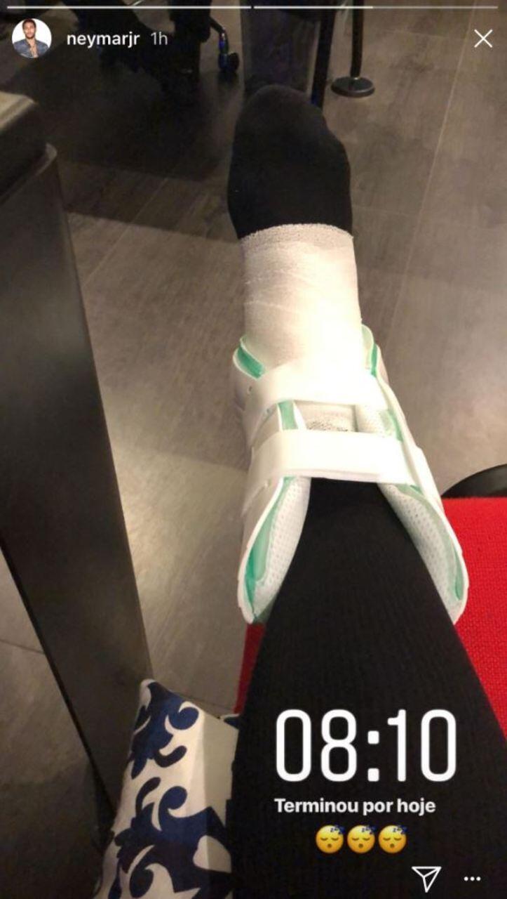 """O jogador mostrou o tornozelo machucado no Instagram. A imagem foi publicada no jornal """"Le Parisien""""."""