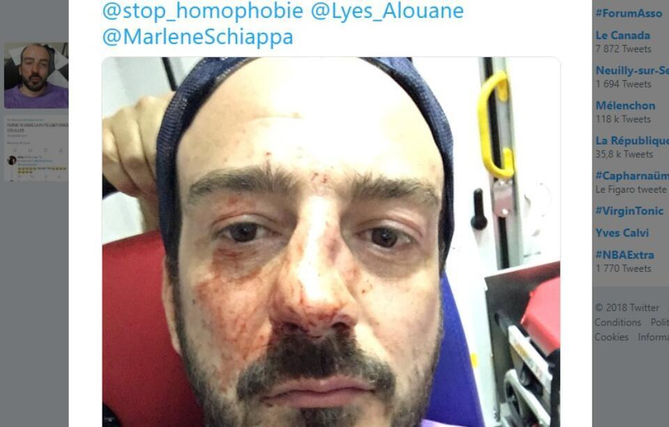 Guillaume Mélanie was attacked coming out of a restaurant in central Paris.