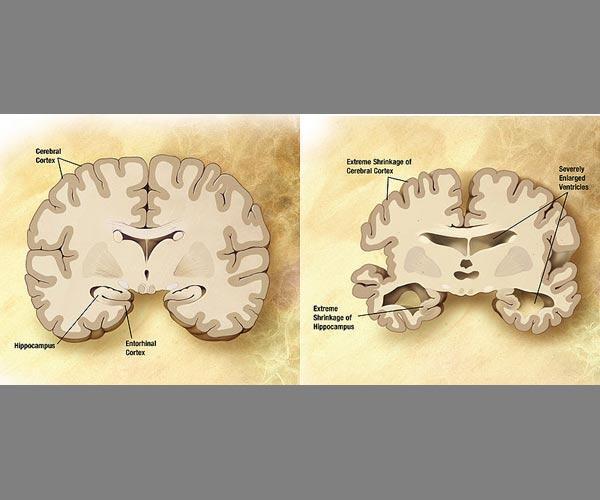 Schéma d'un cerveau normal (g.) et d'un autre touché par la maladie d'Alzheimer (dr.)