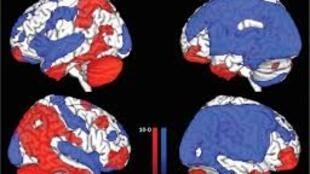 Examen de cerveaux en état de conscience minimale (A) et en état végétatif (B). En bleu, les zones où la métabolisation du glucose est réduite. En rouge, celle où cette métabolisation est conservée.
