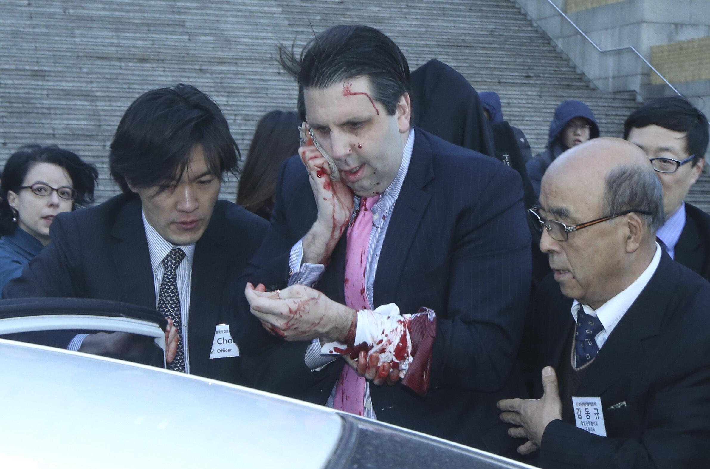 Đại sứ Mỹ tại Hàn Quốc sau khi bị hành hung.