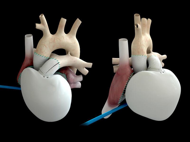 El corazón artificial autónomo creado por los franceses promete la misma revolución que el primer transplante cardíaco realizado por Christiaan Barnard en 1967.