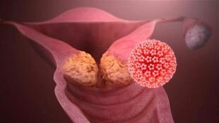 hpv_causing_cervical_cancer_0