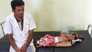 Salwa Ibrahim, qui pèse seulement 3 kg à 5 ans, accompagnée de son père dans un centre de soin de la province de Hajjah, le 23 juin 2020.