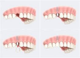 برای شنیدن توضیحات دکتر رامتین تقوی لاریجانی، دندانپزشک بر روی تصویر کلیک کنید.