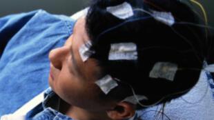 L'épilepsie, maladie neurologique la plus fréquente après la migraine, touche 1 à 2% de la population mondiale.