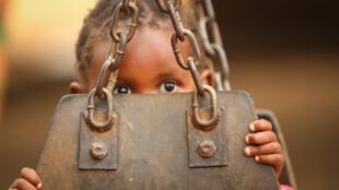 La desnutrición deja serias secuelas en los niños.