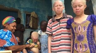 Marie, mother of 5 children of which 4 are albinos. Cheikh (middle), Fatimatou a cousin, Mohammadou and Duary (left).