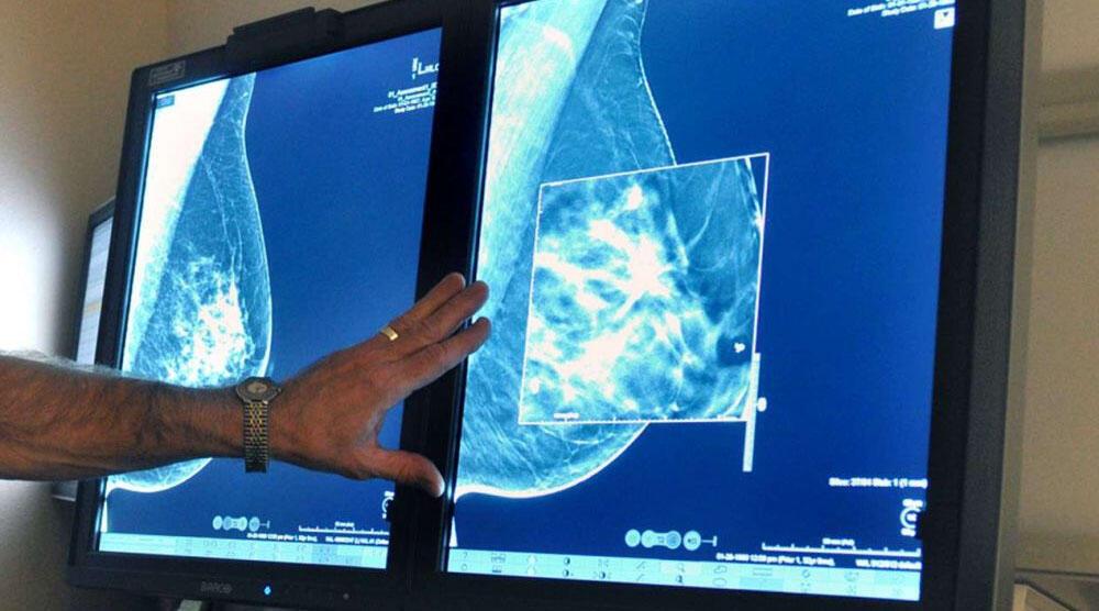 برای شنیدن توضیحات توضیحات دکتر مسعود میرشاهی، پزشک متخصص سرطانشناسی در پاریس، بر روی تصویر کلیک کنید.