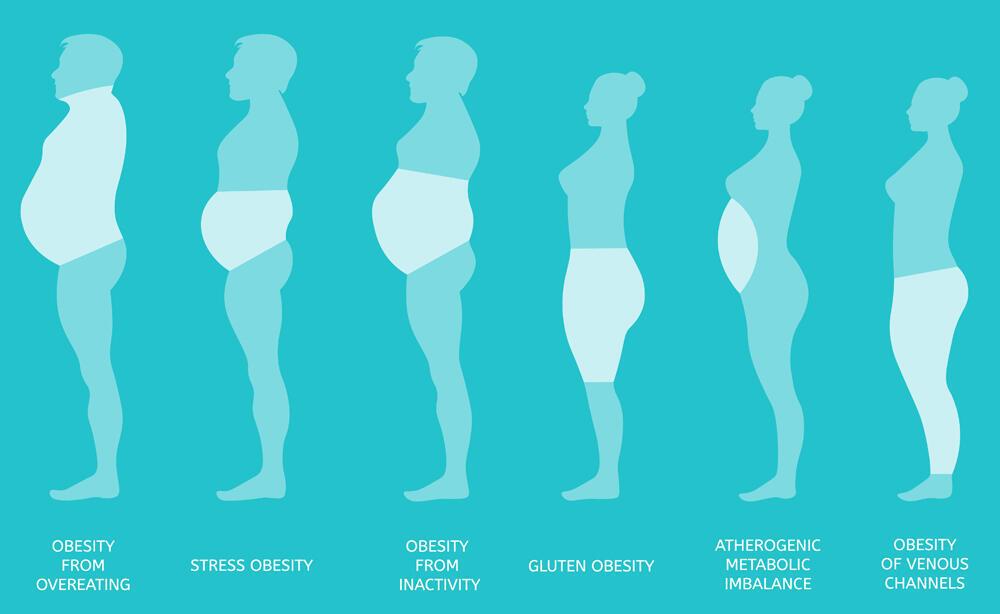 Tipos de obesidad en hombres y mujeres.