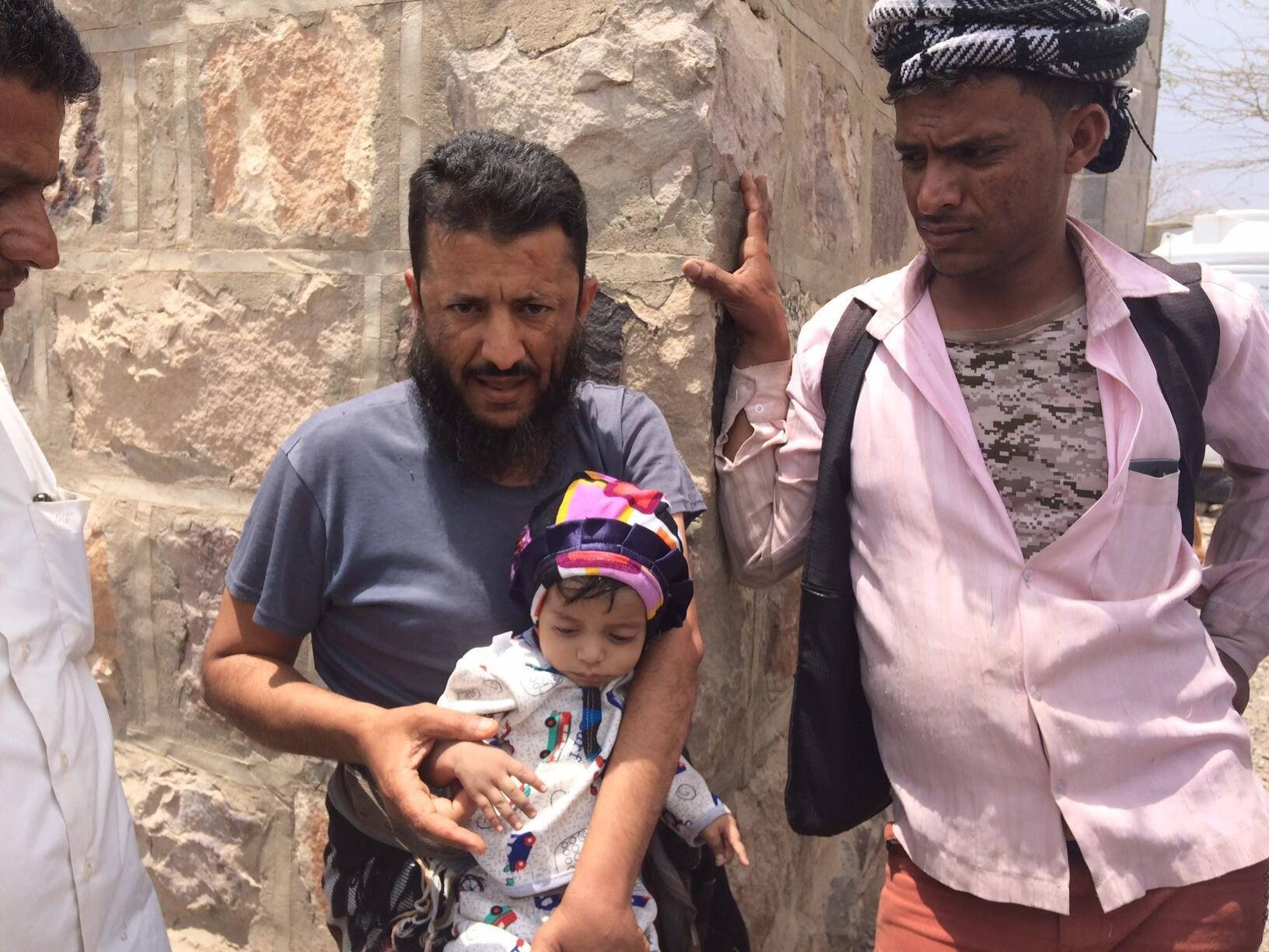 Yemeni boy Bachar, 9 months old, suffers from malnutrition in a country witnessing what the United Nations calls the world's worst humanitarian crisis.