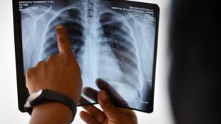 Un médecin analyse une radio des poumons dans une clinique d'un quartier défavorisé de Lima, au Pérou, en 2015.